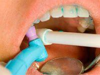 Удаление зубных камней