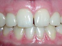 Десна и зубы