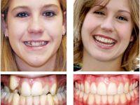 Кривые зубы до и после лечения