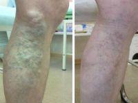 До и после удаления вен на ногах