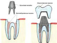 Реставрация коронок на зубах