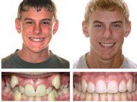 Зубы до и после выравнивания