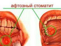 Афтозный стоматит