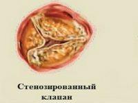 Склерозированный аортальный клапан