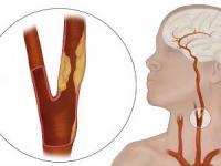Атеросклероз сонных артерий
