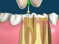 Чистка каналов зубов