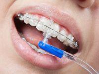 Чистка ершиком зубов с брекетами