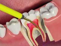 Очистка зубного канала