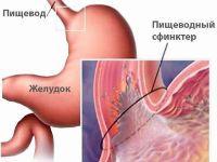 Патология желудка