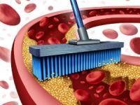 Как убрать холестериновые бляшки