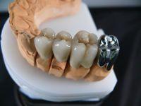 Модель коронки на зубах