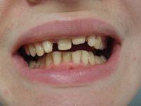 Неровные зубы у ребенка