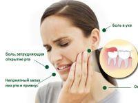 Симптомы зуба мудрости