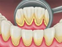 Желтый налет на зубах